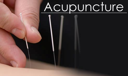 Acupuncture_pic2