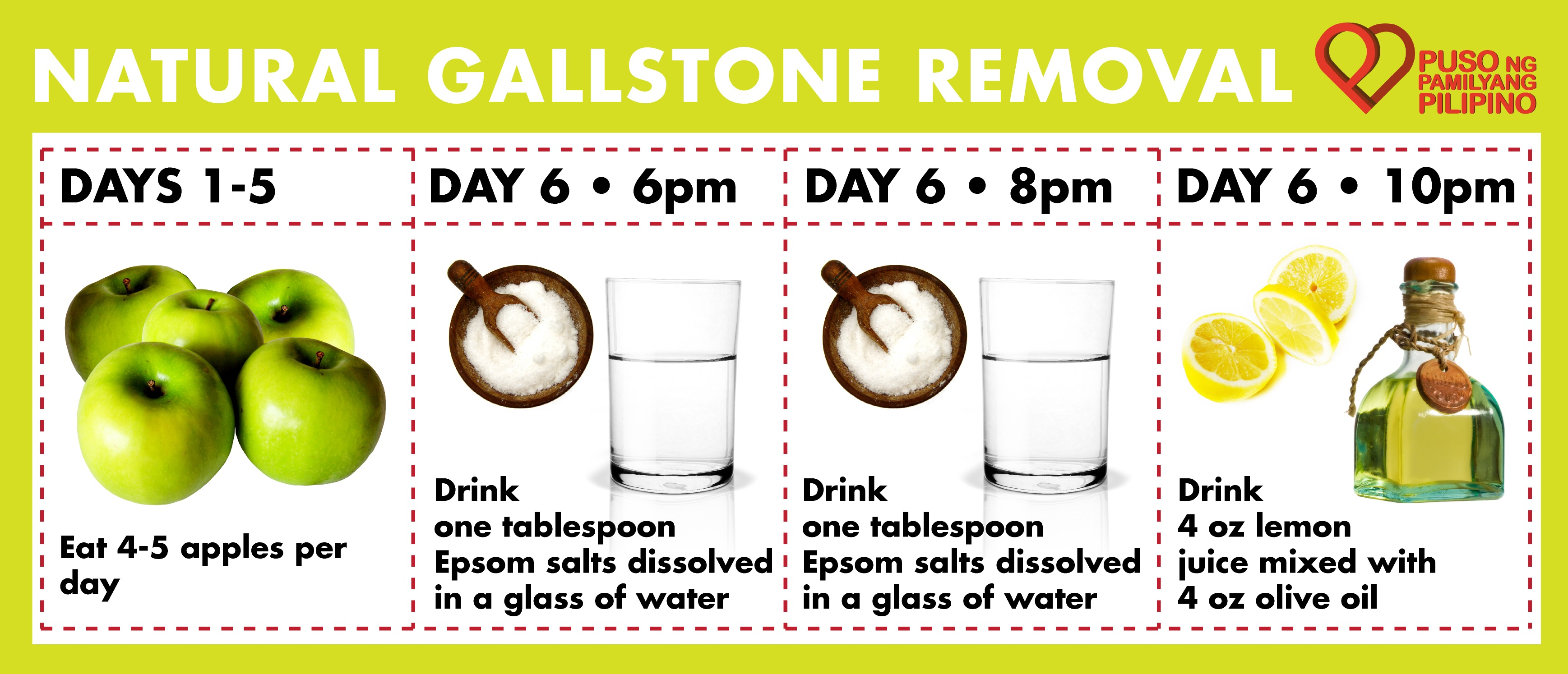 Health Getting Rid Of Gallstones Without Surgery